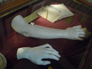 George Sand's arm & Chopin's hand